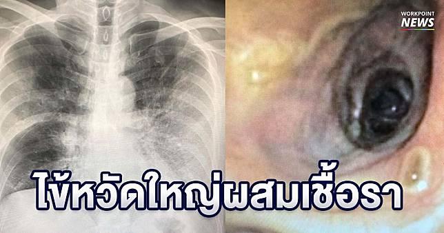 หมอเตือนป่วยไข้หวัดใหญ่ ติดเชื้อราในอากาศลุกลามจนเสียชีวิต