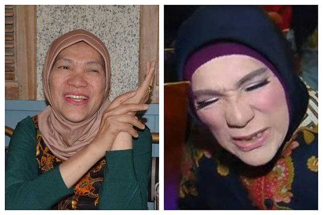 Lama Menghilang, Dorce Gamalama Mengidap 2 Penyakit Kronis
