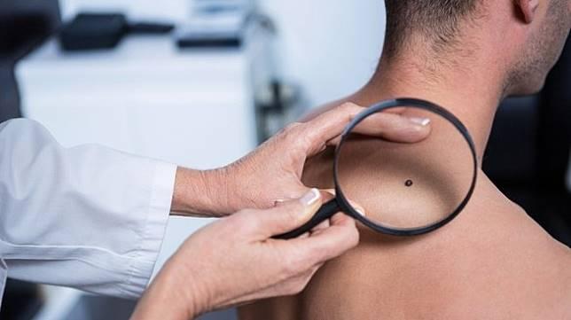 Diidap menantu Hatta Rajasa, apa penyebab kanker kulit?