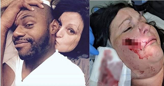 難忍男友「交換性伴侶」怪癖 女提分手竟遭割臉縫122針!