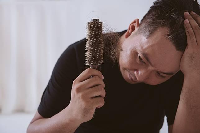 4 Jenis Obat Penumbuh Rambut Dari Yang Kimiawi Hingga Alami Hellosehat Com Line Today