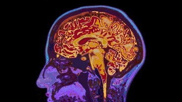 人腦的超能力!科學家找到腦產生意識的線索