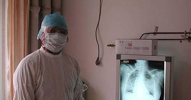 武漢肺炎/陸專家穿戴防護衣、N95口罩仍感染肺炎 判斷為結膜感染
