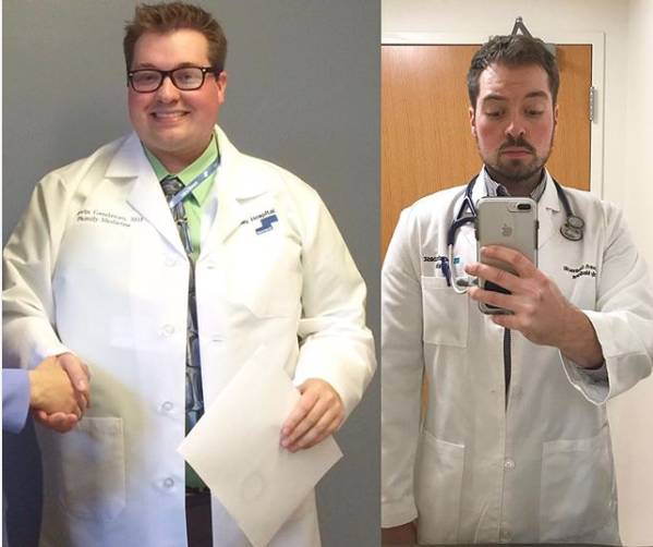 Berhasil Turunkan Berat Badan Hingga 46 Kg Dokter Ini Justru Mengaku Bagian 'Terberatnya' Baru Dimulai Setelah Itu