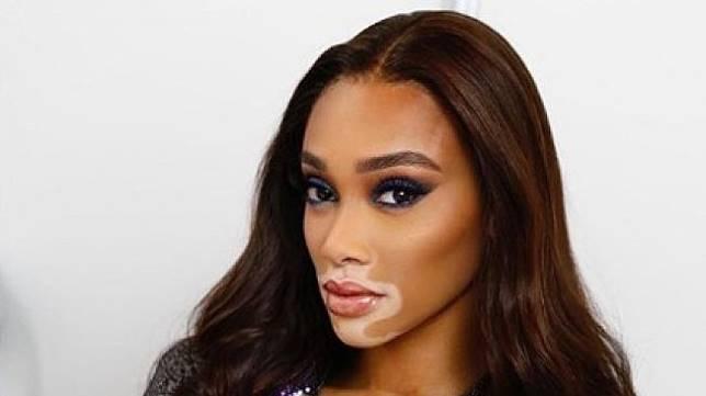 Model vitiligo Winnie Harlow. (Instagram/@winnieharlow)