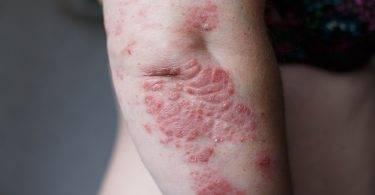 用類固醇會得皮膚病?食藥署闢謠:不能這樣用!