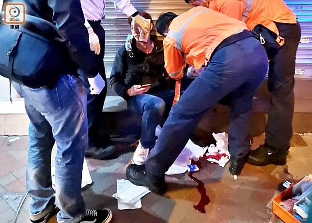 男途人追賊時遭對方持刀片割傷臉部。(陳錦揮攝)
