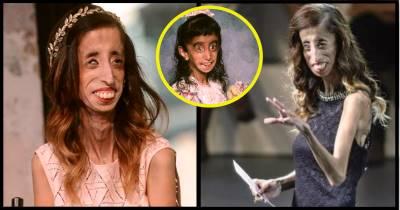 Bị xã hội rủa 'Đi chết đi', 'Cô gái xấu nhất thế giới' có màn 'trả thù' khiến cả TG nể phục