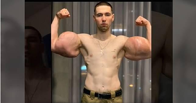 注射「3kg凡士林當二頭肌」!健身美男手臂「神經腐蝕」手術切除