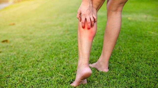 Ilustrasi kulit memerah dan gatal. (Shutterstock)
