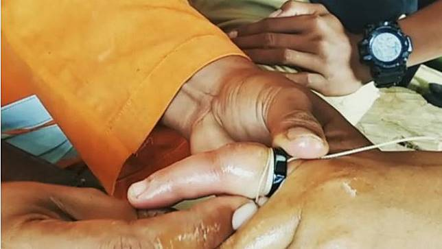 Cerita Tim Reaksi Cepat BPBD Blora Bantu Copot Cincin Kawin Warga Wonogiri hingga Istri Polisi