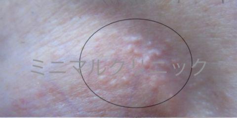 エクリン 汗 嚢腫