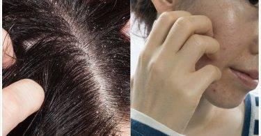 頭皮出油、長痘痘,是頭皮長蟲?