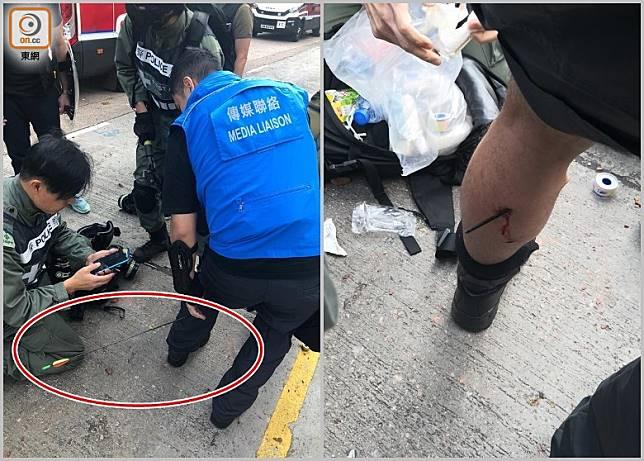 傳媒聯絡隊隊員警長左小腿中箭受傷。