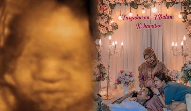 Young Lex dan Pacar Gelar Tasyakuran Kehamilan 7 Bulan, Kapan Naik Pelaminan?