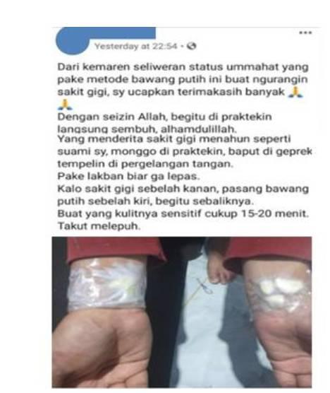 Tangkapan layar yang menyebutkan bahwa menempelkan bawang putih di pergelangan tangan dapat menyembuhkan sakit gigi.(Facebook)   Artikel ini telah tayang di Kompas.com dengan judul