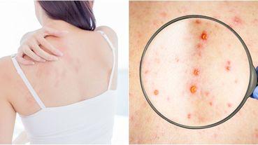 【好奇心俱樂部】「毛囊炎」怎麼治療?背部痘痘其實不是痘痘,而且很難好,皮膚科醫師一次揭露治療秘訣