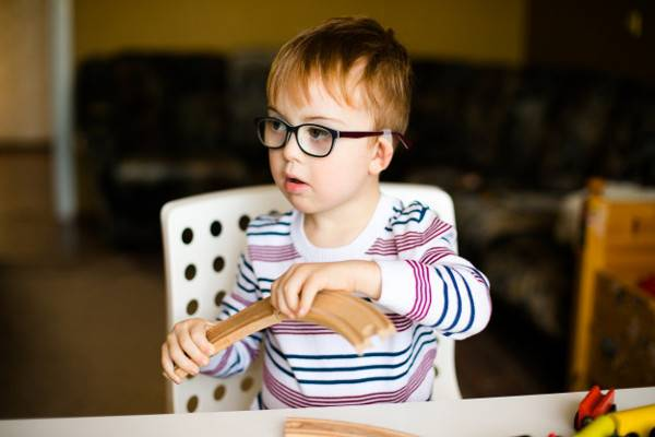 Fakta Sindrom Williams yang Diderita Anak Dede Sunandar