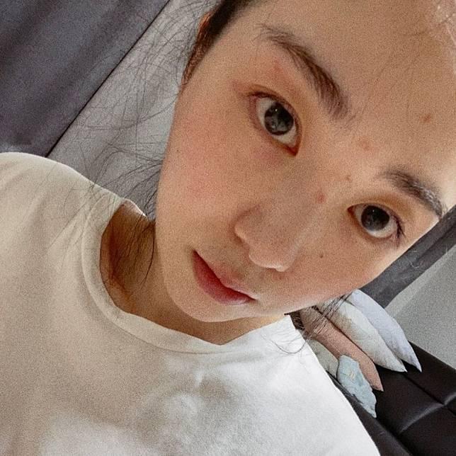珉娥今日上載自拍照,並指自己做了化妝品公司的療程及使用護膚品而出現皮膚炎。