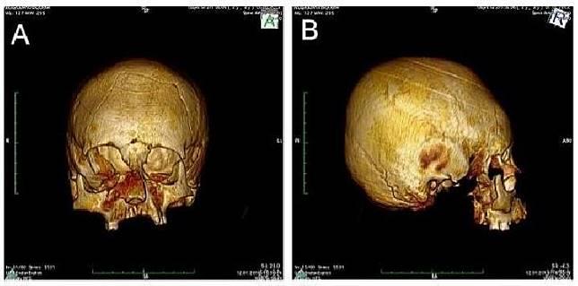 Arkeolog temukan kerangka manusia berkepala alien di Kroasia. Kredit: Image: M Kavka/CC
