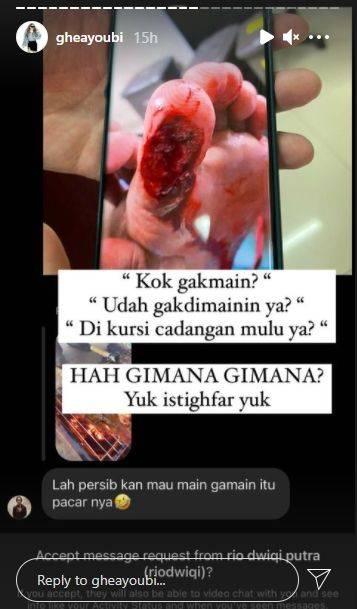 Ghea Youbi bagikan foto luka cedera Gian Zola yang mengerikan. (Instagram/gheayoubi)