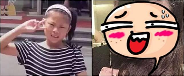 Kisah gadis 15 tahun operasi wajah hingga 100 kali demi seperti boneka