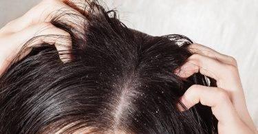 冬天頭皮又乾又癢!抗屑、生髮洗髮精真的有效嗎?