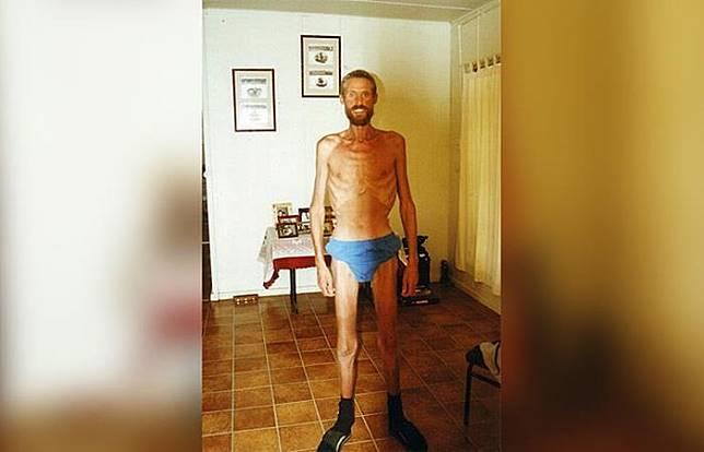 Ricky Meege kehilangan berat badannya sebanyak 45 kilogram.