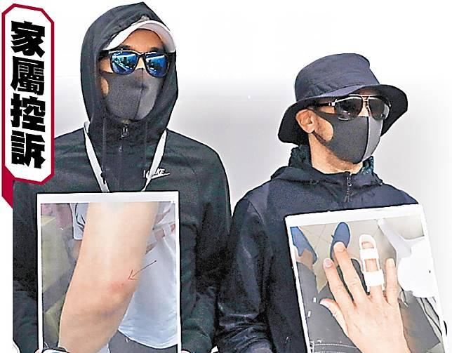 事主的兩名兒子在記者會上展示父親傷勢相片。(黃仲民攝)