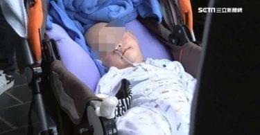 女嬰頭顱凹陷雙眼失明,心碎母抱「最小植物人」出庭