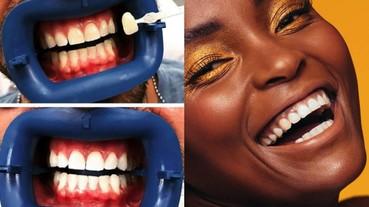 牙齒美白用 LED 燈照真的有用嗎?名醫破解牙齒美白迷思