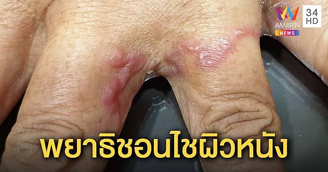 ชายวัย 60 คันตุ่มแดงบนง่ามนิ้ว หมอชี้พยาธิไชผิวหนัง แนะอย่าแตะดินเปื้อนมูล-ถ่ายพยาธิหมาแมว