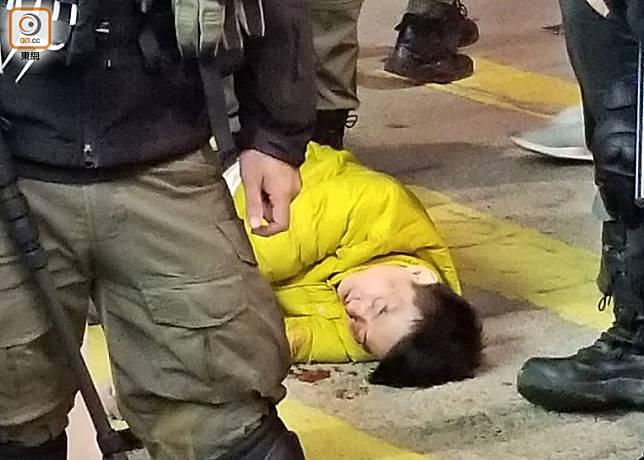 男子與人爭執後,被對方用電筒打傷頭部。(梁頴福攝)