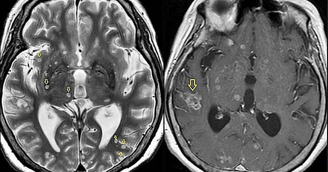 婦人發燒後陷入昏迷 醫檢查驚見「腦子佈滿蟲蟲」竟是生吃豬肉導致