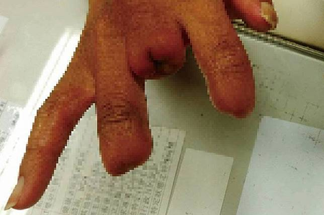 ▲因為柏格氏症,已有 2 指遭截肢。(圖/翻攝自門諾醫院臉書)