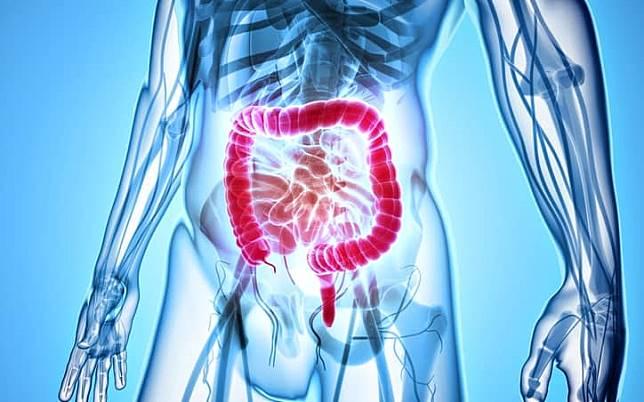 不看會後悔!結腸與大腸直腸癌的關係