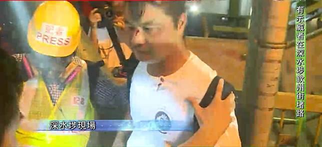 白衣男子被打傷。無線新聞截圖