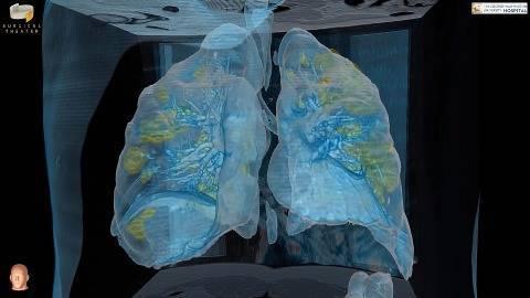 Tampilan render VR organ paru-paru pasien COVID-19. Foto: Dok. George Washington University Hospital/Surgical Theater