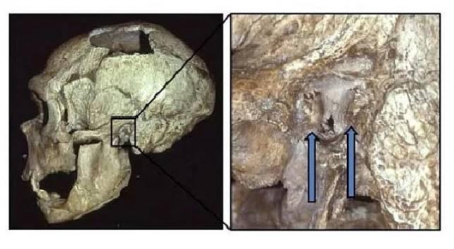 Fosil tengkoran manusia purba Nenderthal (Kiri) dan telinga yang terkena Swimmer's Ear (kiri). (Dok. Erik Trinkus/Washington Univerisity)