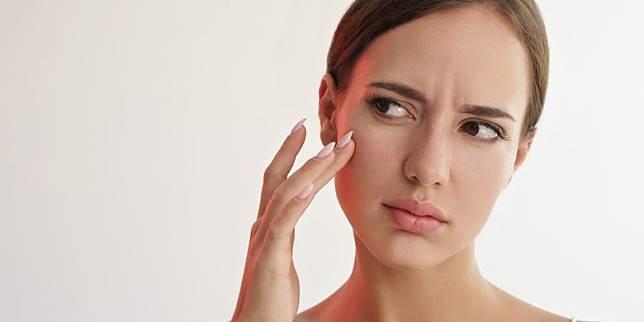 Tidak Hanya Skincare, 6 Suplemen Ini Juga Bisa Bantu Atasi Jerawat