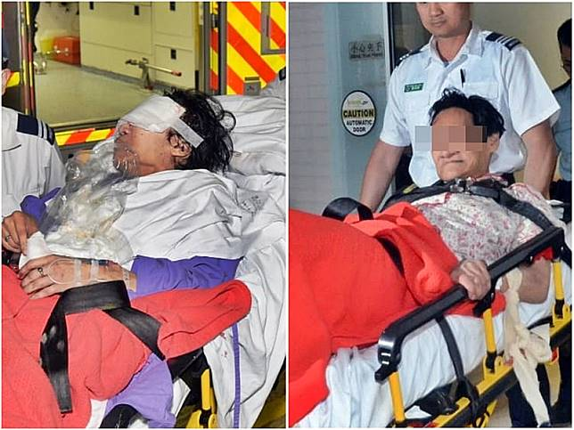 胞姊(左)左眼嚴重受傷、女疑犯(右)亦送院檢驗。