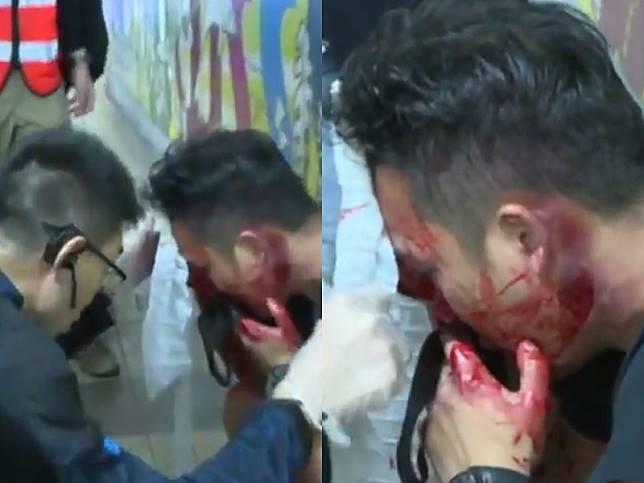 疑有臥底警員被圍毆至頭破血流。now新聞截圖
