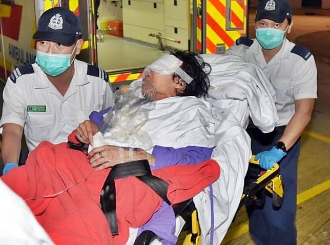 胞姊左眼嚴重受傷,送院搶救。