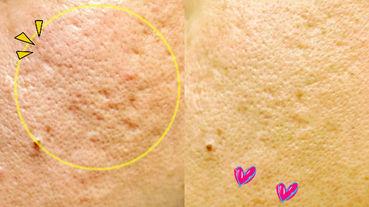 醫美 皇珈美學 海菲秀+探索皮秒雷射才一次而已,30天後毛孔痘疤真的變小變平,老公看見超開心!真心分享無業配!