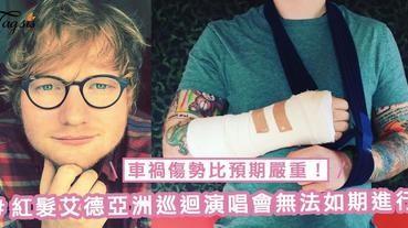 車禍傷勢比預期嚴重!Ed Sheeran亞洲巡迴演唱會將無法如期進行,台北至香港站演唱會都確定會延期!