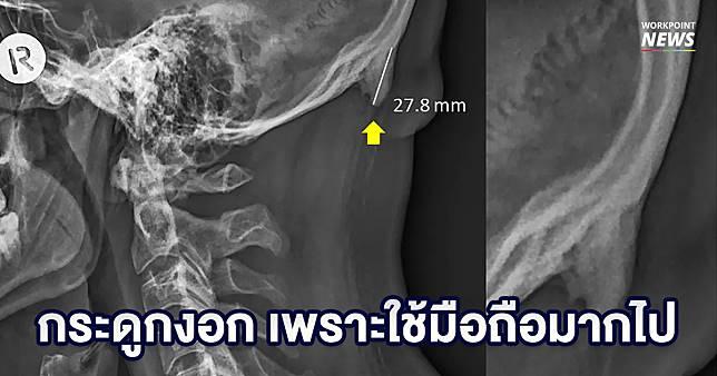 นักวิจัยออสเตรเลีย พบกระดูกงอกออกจากกะโหลกของกลุ่มวัยรุ่น คาดว่าเกิดจากใช้มือถือมากไป