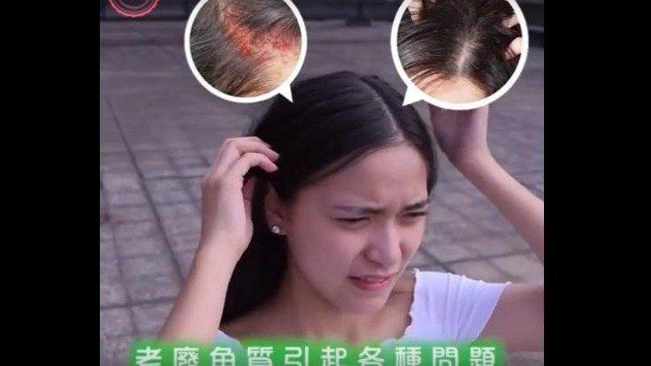 韓國 Assoter 頭皮去角質 頭皮吸塵器