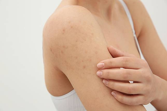 即使炎症康復,亦會留有難以退去的印,林醫生建議大家要用不會堵塞毛孔的化學防曬保護肌膚,免得色素沉殿。不過之後記得要做好清潔!(網上圖片)