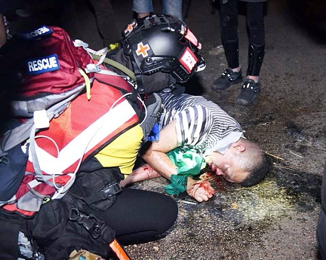 旺角中心對出一名中年男子被圍毆,口鼻流血倒地。