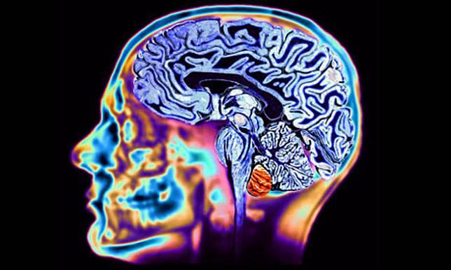 Bisa Meningkatkan Kualitas Otak